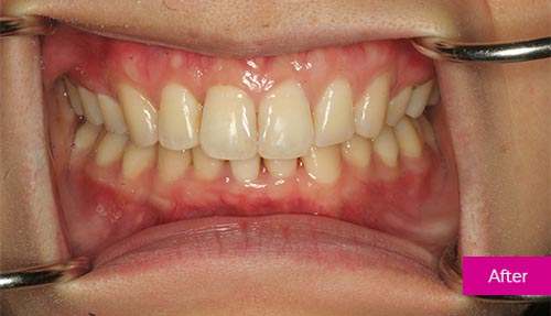 Invisalign Contouring After 5