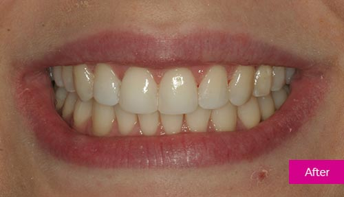 Teeth Whitening and Bonding after 1