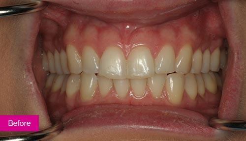 Teeth Whitening and Bonding Before 1