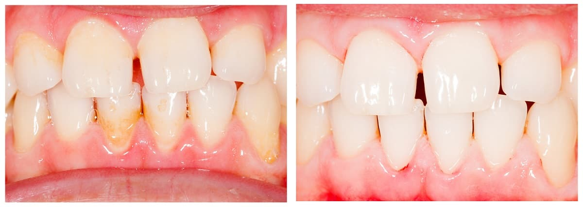 Teeth Whitening Before and After 6 - Teeth Whitening London