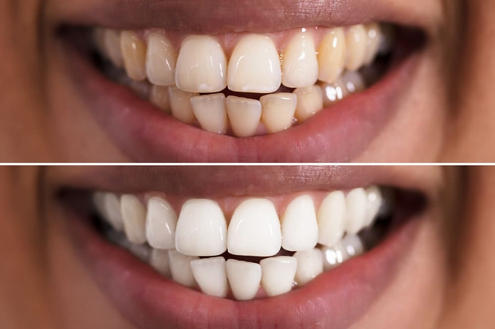 Teeth Whitening Before and After 5 - Teeth Whitening London