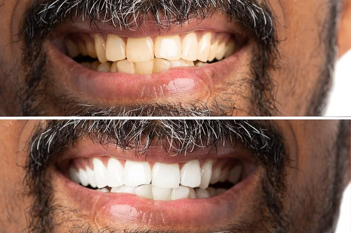 Teeth Whitening Before and After 1 - Teeth Whitening London