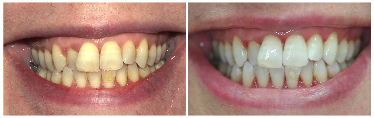 Teeth Whitening Before and After 7 - Teeth Whitening London