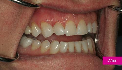 Dental Bonding After 1