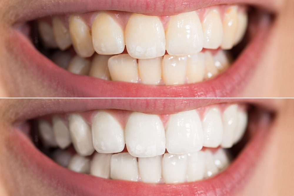 Teeth Whitening Before and After 4 - Teeth Whitening London