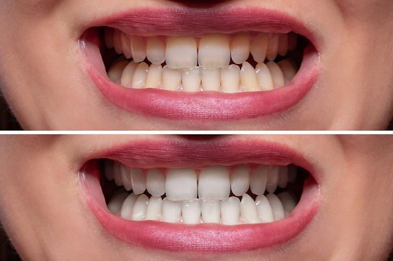 Teeth Whitening Before and After 3 - Teeth Whitening London