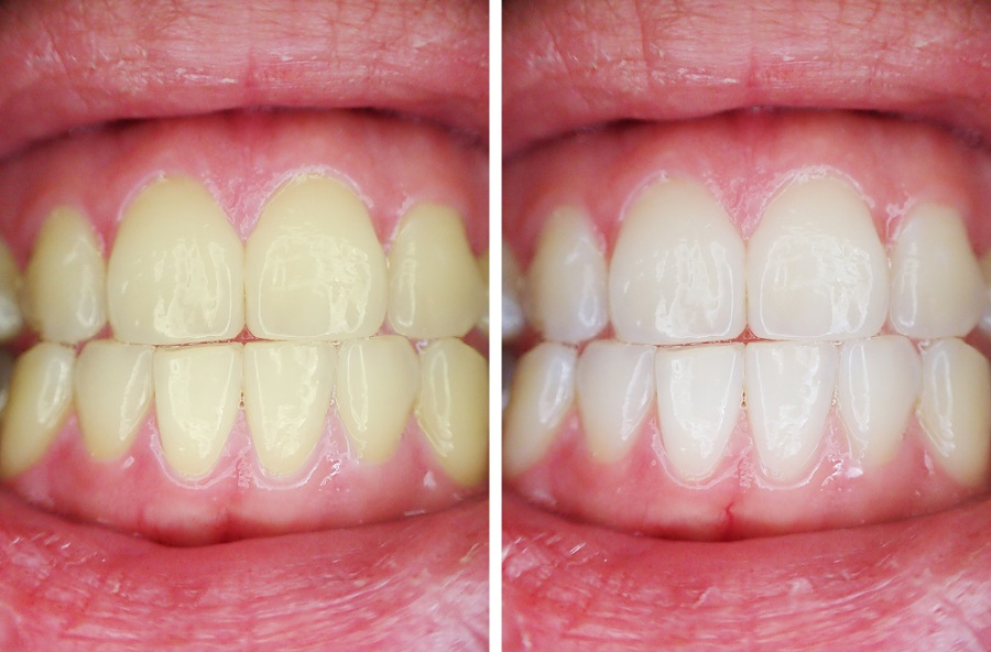 Teeth Whitening Before and After 2 - Teeth Whitening London